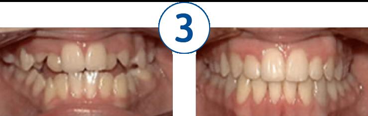 Dentista Chiaravalle